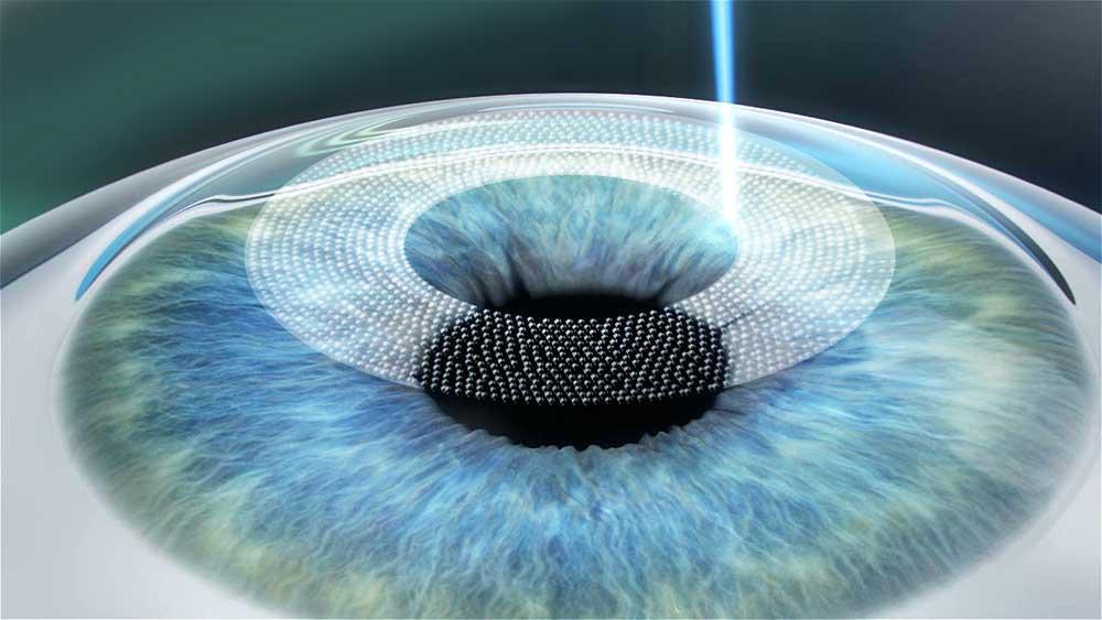 1. Schritt : Flap erzeugen mit dem Femtosekunden-laser